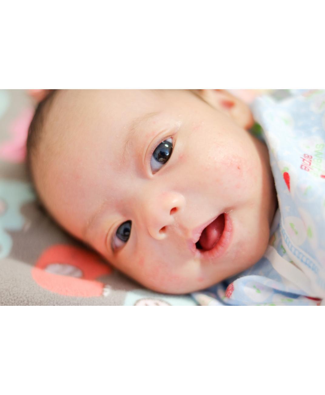 Bebeklerin Yüzünde Sivilce  Neden Olur Nasıl Geçer?